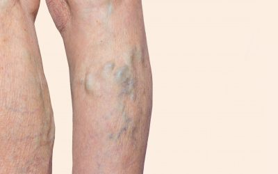 A Vein Clinic Near Hackensack Describes the Treatment of Varicose Veins and Spider Veins